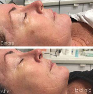 Skin needling pigmentation treatment